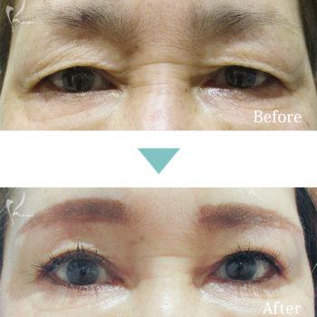 眉下切開の施術前後の症例写真