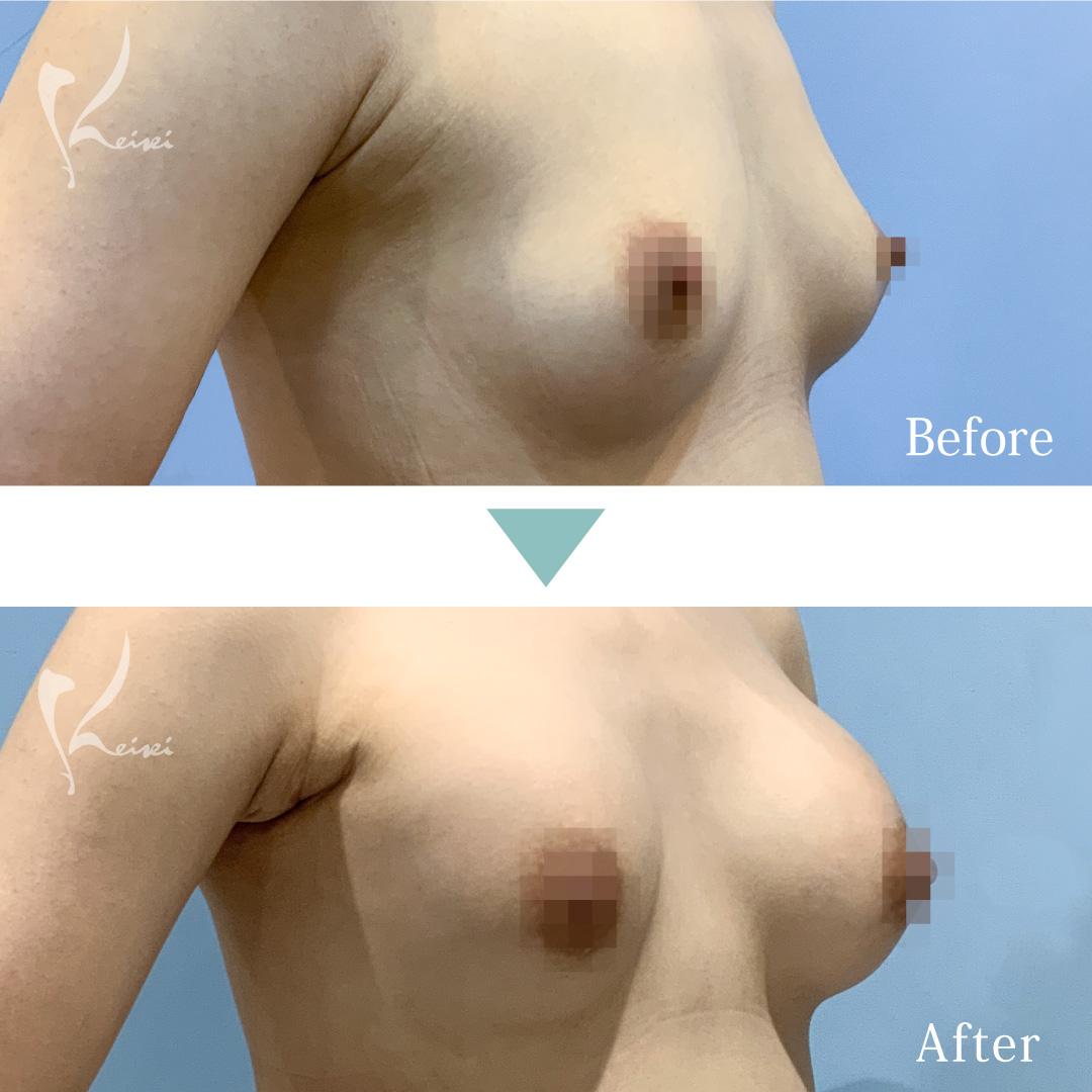 モティバエルゴノミクスを用いた豊胸術の斜めからの症例写真