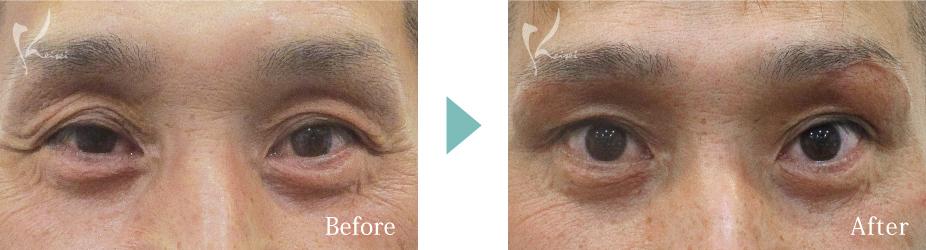 眉下切開法(眉下リフト)の症例写真