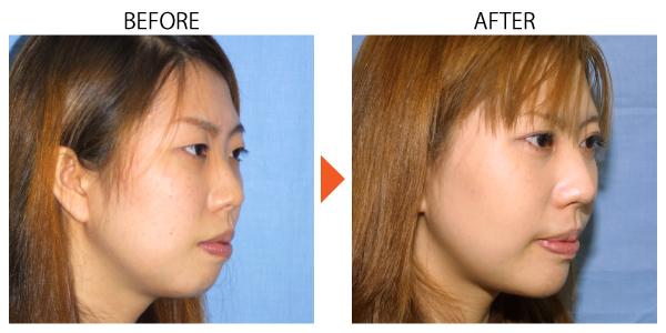 アゴプロテーゼ 人口軟骨 インプラント アデノイド顔貌 症例