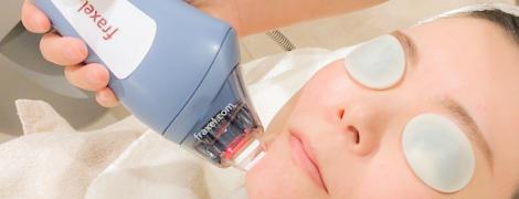 フラクセル フラクショナル 美容皮膚科
