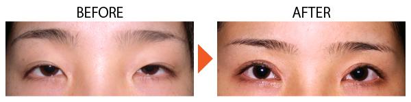 眼瞼下垂ope前後の画像