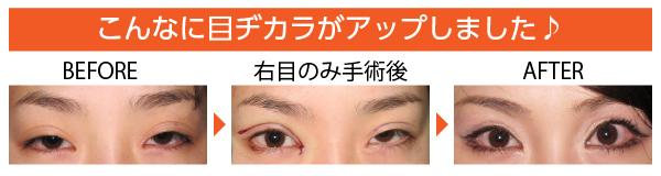 眼瞼下垂 保険 まぶた たるみ 大阪 二重まぶた 症例