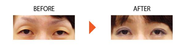 切らない 眼瞼下垂 経結膜的眼瞼下垂 大阪 症例