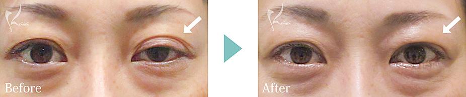 眼瞼下垂の片目施術の症例写真
