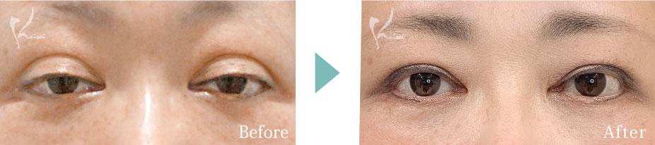 眼瞼下垂の症例写真