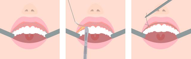 上口唇粘膜切除術