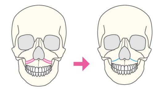 ルフォー(LeFortI型)骨切り術(中顔面短縮術)