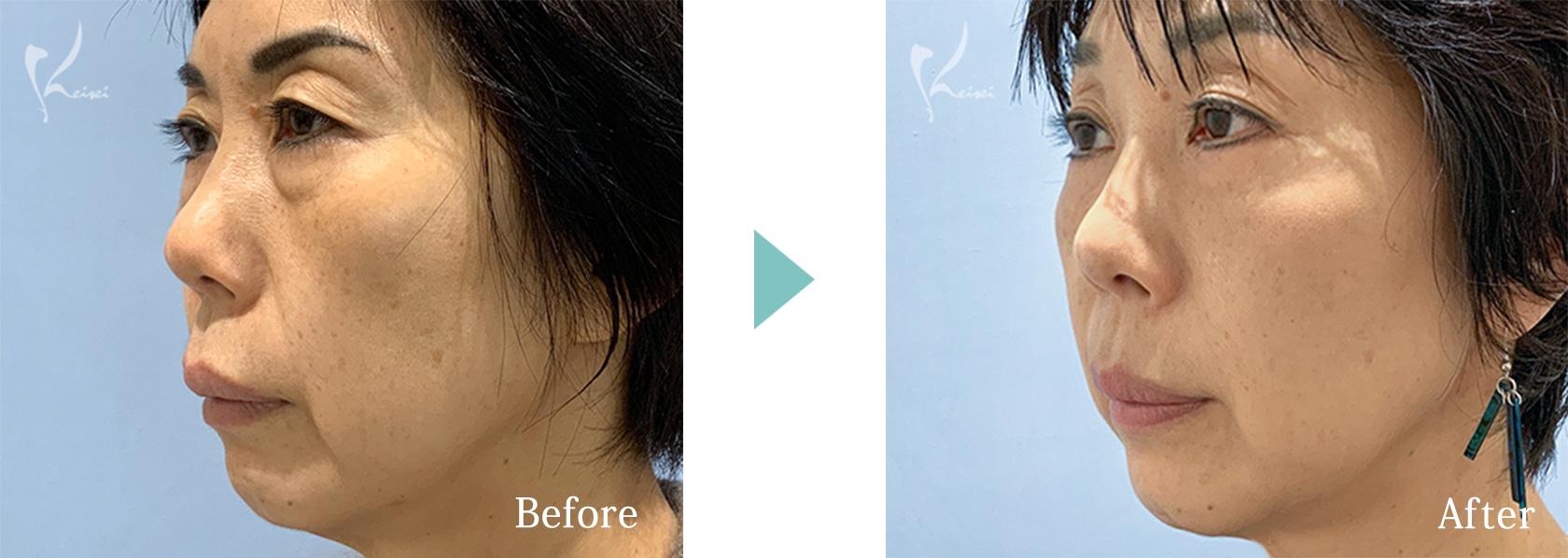 下眼瞼たるみ取り(ハムラ法)症例