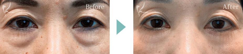 下眼瞼たるみ取りハムラ法の症例写真