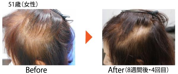 Dr.CYJ ヘアフィラー 毛髪再生 AGA ハゲ治療 発毛 育毛 薄毛 世界初 ハイブリッドペプチド 症例
