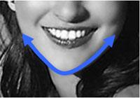 ヴィーナス 下顎輪郭全周骨切り エラ削り アゴ骨削り 下顎角 フェイスライン 輪郭形成 小顔