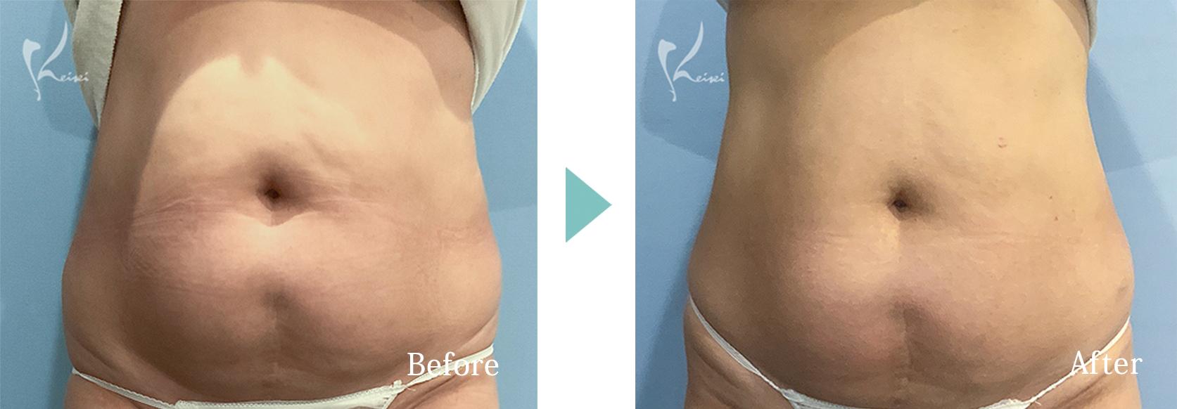 腹部のイタリアンシェイプの症例写真(正面)