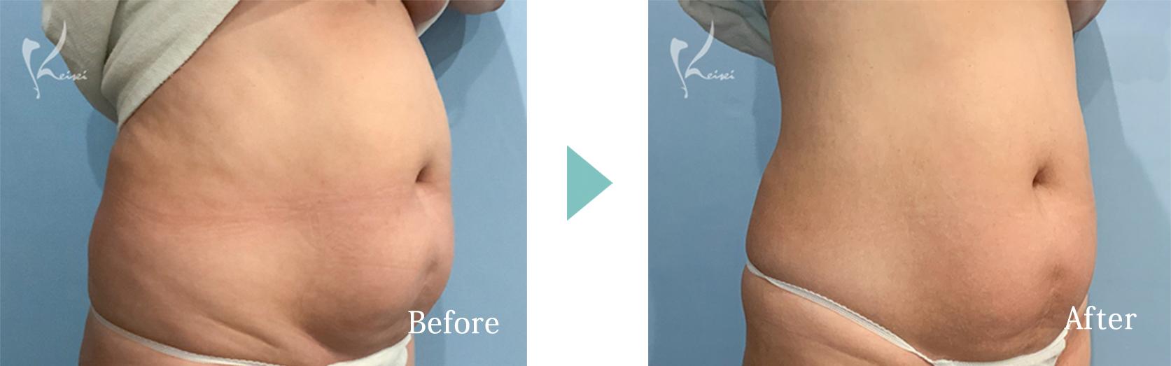 腹部のイタリアンシェイプの症例写真(斜め)