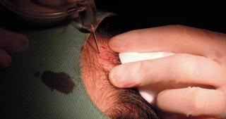 自毛植毛 薄毛治療 AGA 大阪 ダイレクト法 ハゲ治療