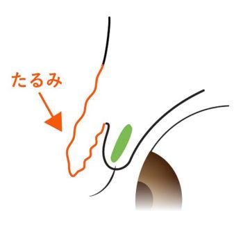 皮膚弛緩性眼瞼下垂の説明図