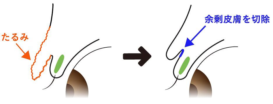 皮膚弛緩性眼瞼下垂の説明図と余剰皮膚を切除する図