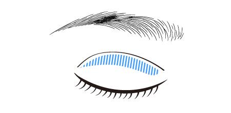 上眼瞼形成術の切除部分を示す図