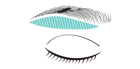 眉下切開の切除部分を示す図