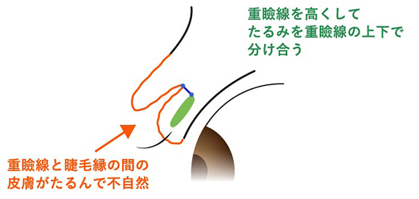 高い位置で重瞼を作ることにより重瞼線と睫毛縁の間の皮膚がたるんで不自然になる場合を示す図