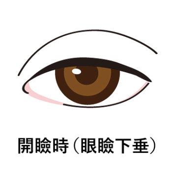 眼瞼下垂の開瞼時のイラスト画像
