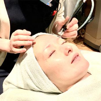 シルクピールの施術を受ける栗田医師の画像