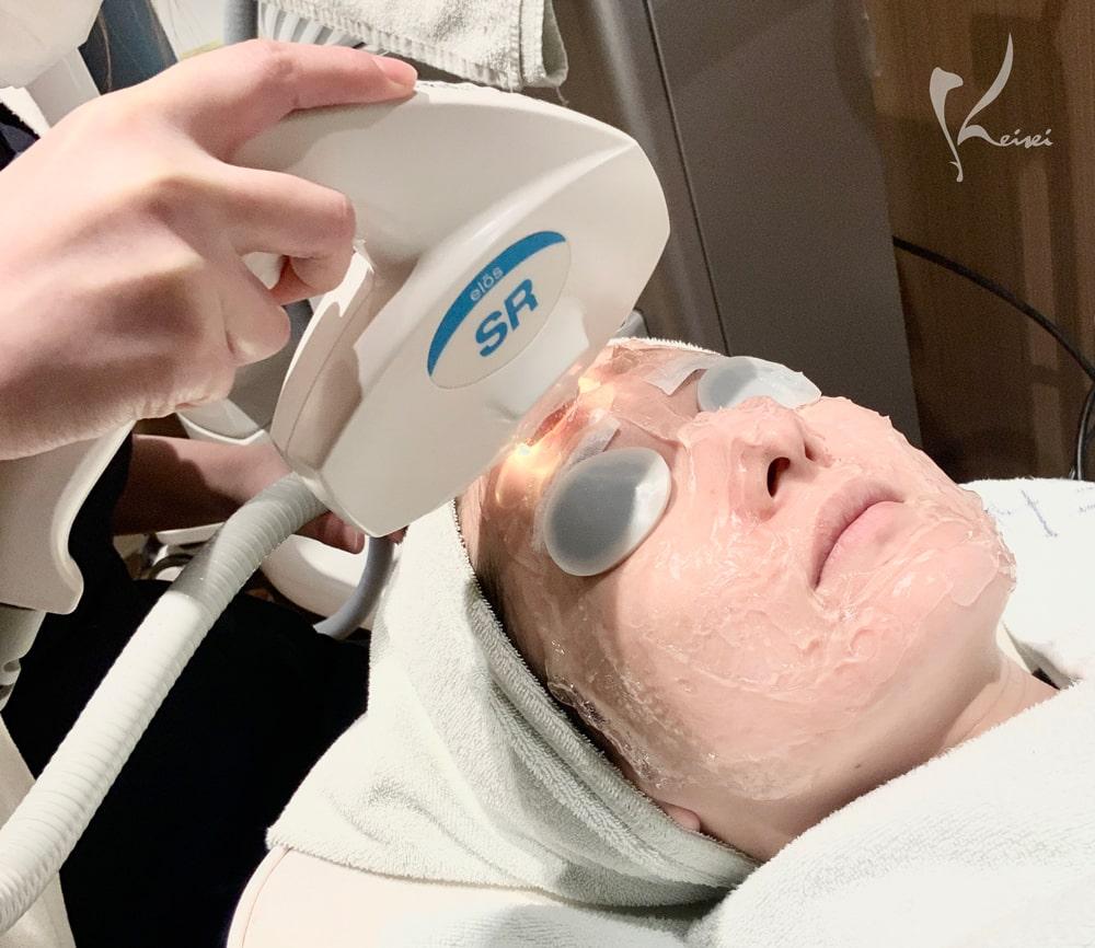 フォトRFの施術を受ける栗田医師の画像