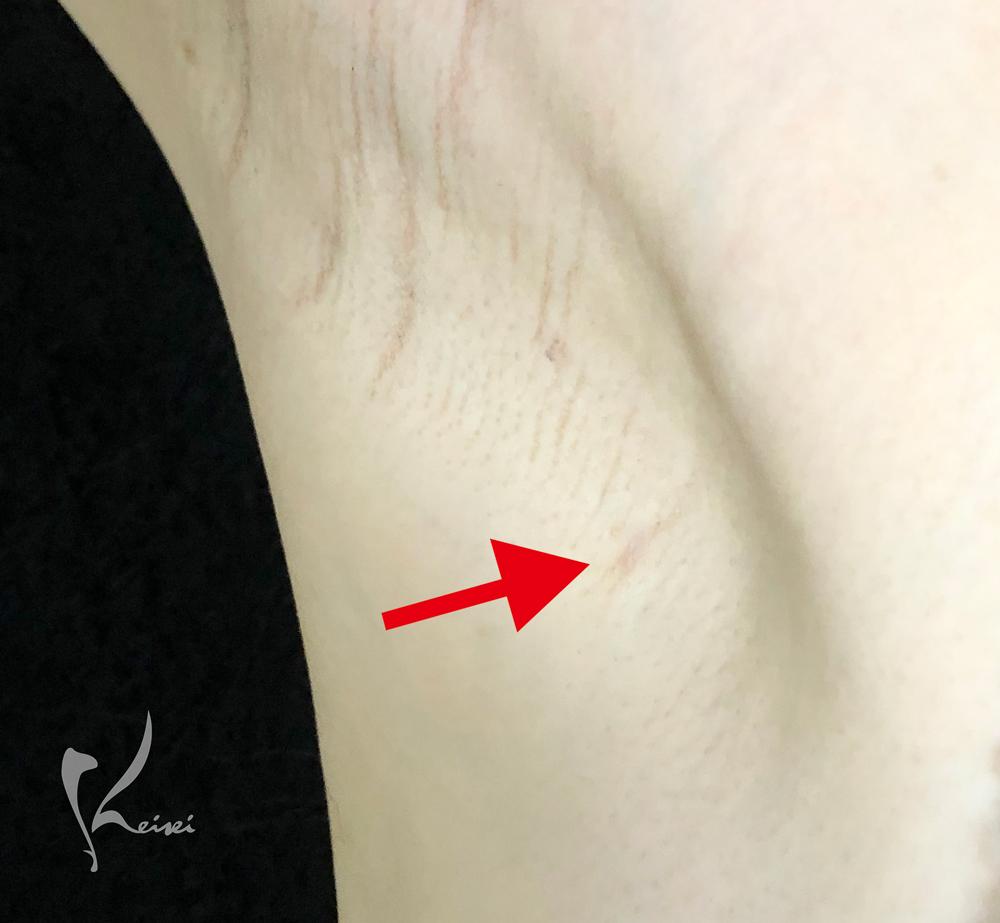 栗田医師の腋の毛穴のトンネル施術後約2ヶ月後の画像