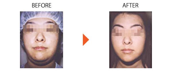 バッカルファット ブルドック顔 ホホのたるみ 小顔 下ぶくれ 大阪 症例