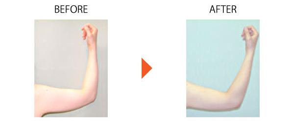 脂肪吸引 ベイザー ダイエット メディカルダイエット 痩身 上腕 症例