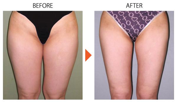 脂肪吸引 ベイザー ダイエット メディカルダイエット 痩身 大腿 太もも 症例