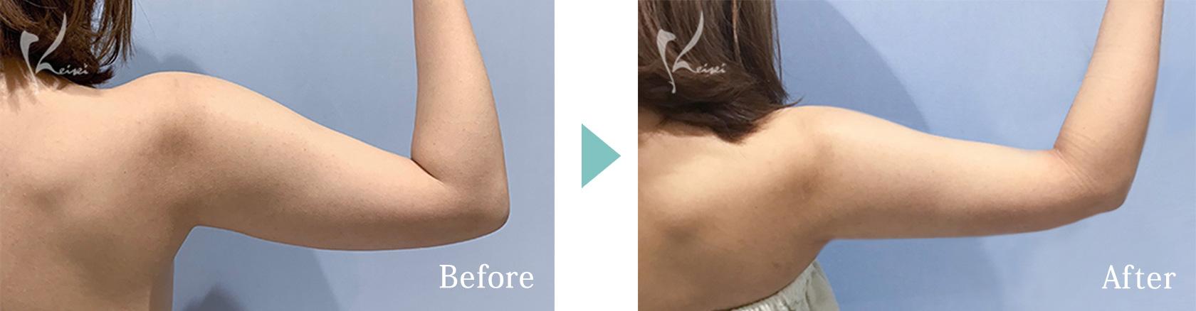 上腕の脂肪吸引の症例写真