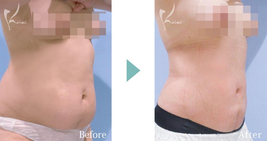 腹部と腰のボディジェット脂肪吸引の症例写真