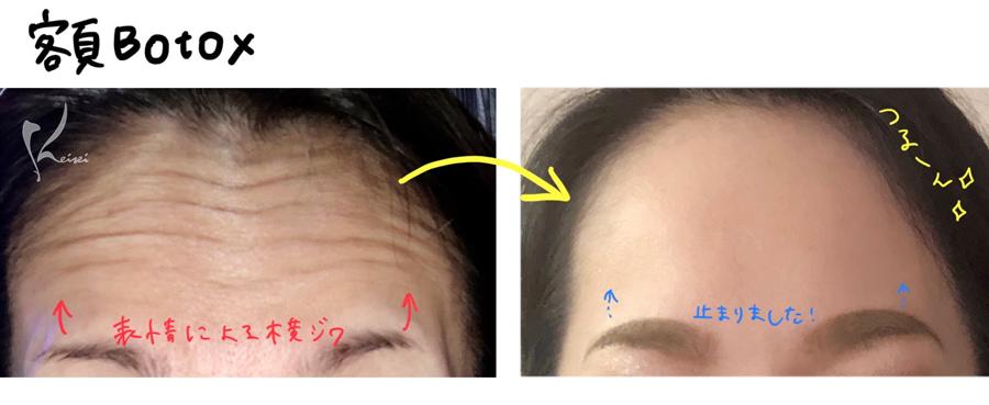 額ボトックス注射のビフォアーアフター画像