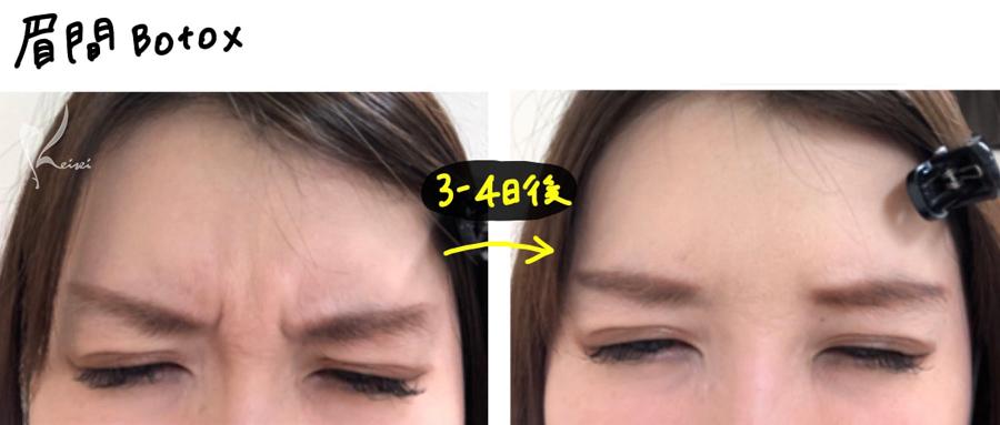 眉間のボトックス注射のビフォアーアフター画像