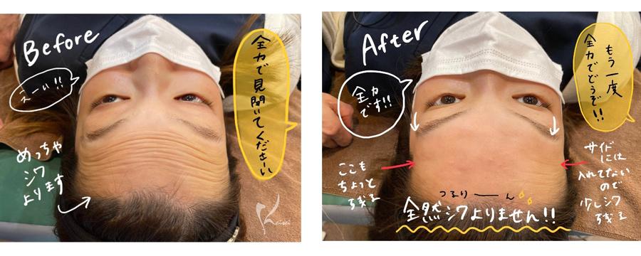 額のヒアルロン酸注入前後の額の写真