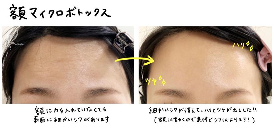 額マイクロボトックス注射のビフォアーアフター画像