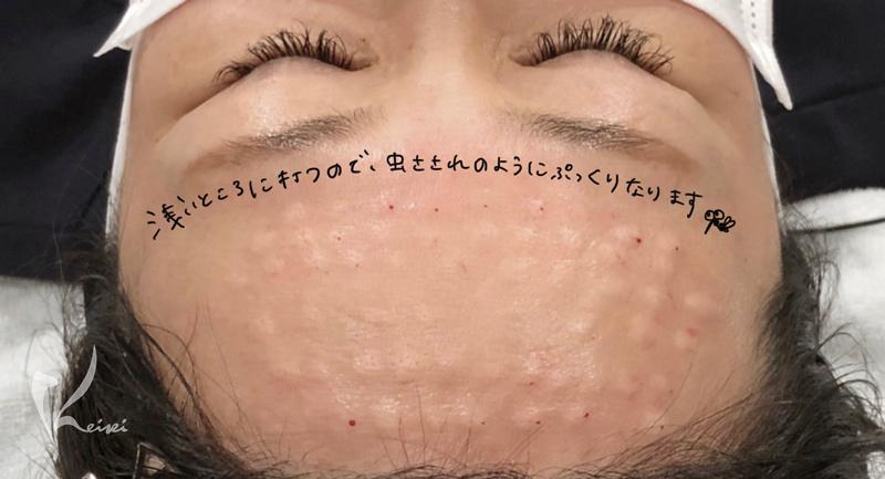額マイクロボトックス注射直後の額の画像