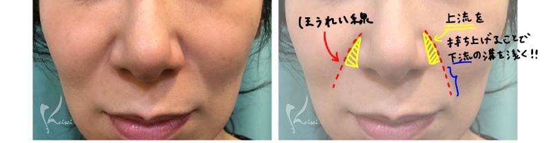 ほうれい線に対する注入療法の解説画像
