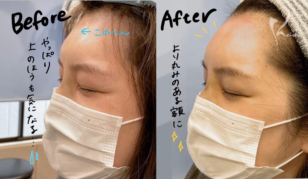 赤松さん2回目のヒアルロン酸注入により額の段差が解消されたことを示すビフォアーアフターの写真