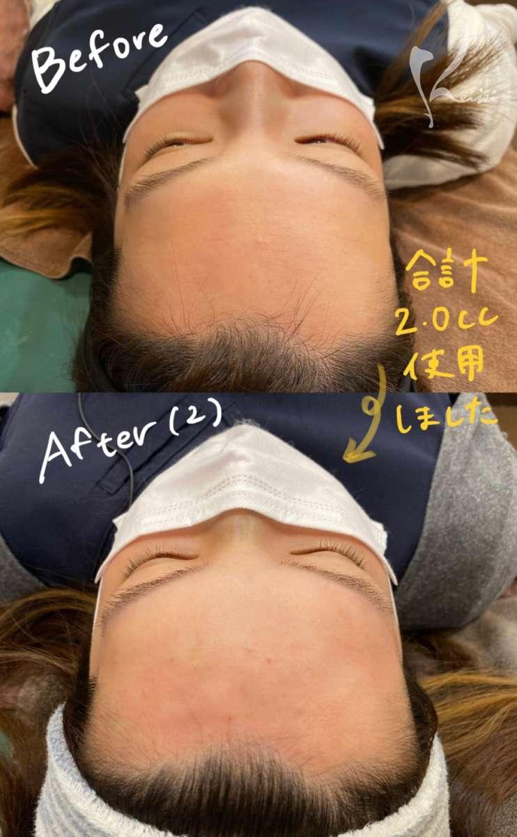 赤松さん1回目のヒアルロン酸注入前から2回目注入後の上からのビフォアーアフター写真