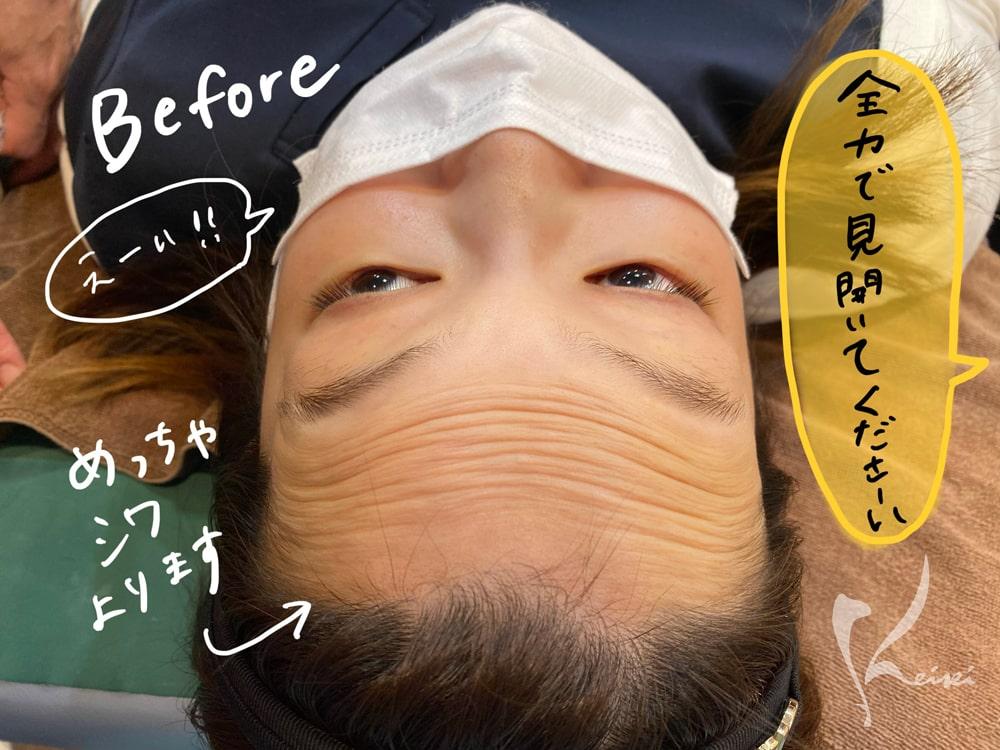 赤松さんヒアルロン酸注入前に全力で目を見開き、額に多くのシワが出来ていることを示す写真