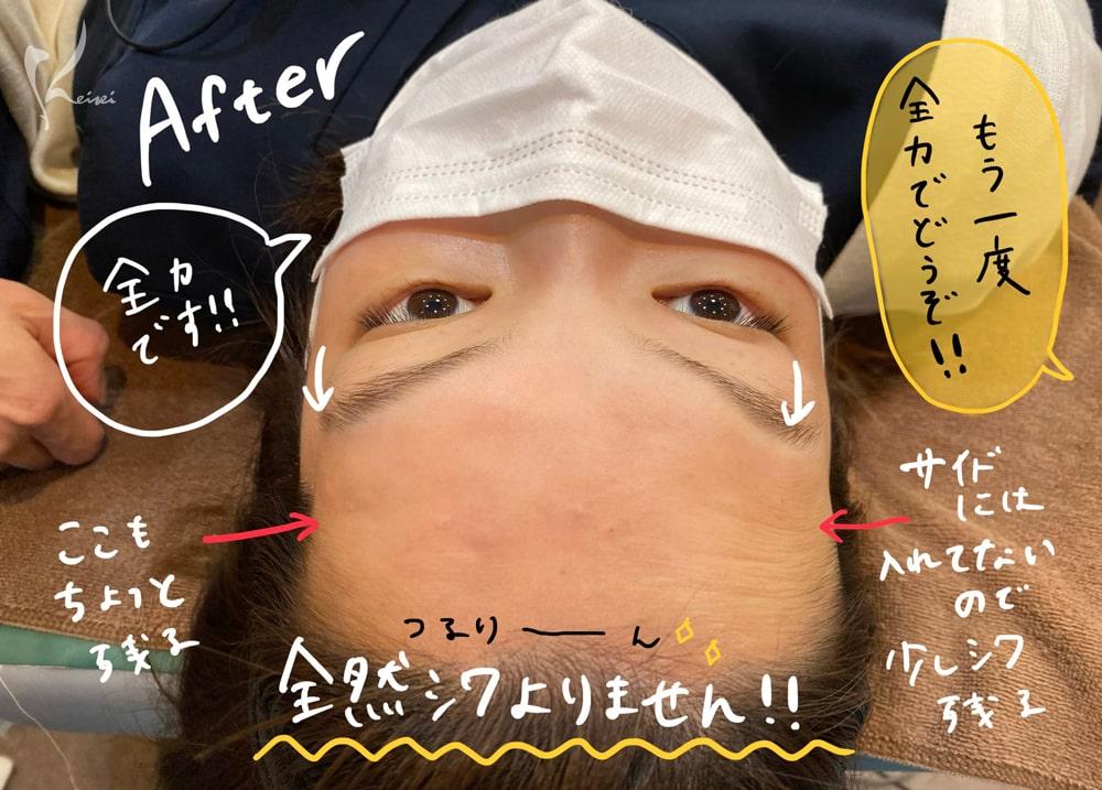 赤松さんヒアルロン酸注入後に、全力で目を見開いても額にシワが出来なくなっていることを示す写真