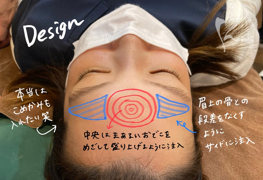 赤松さんヒアルロン酸注入箇所のデザイン写真