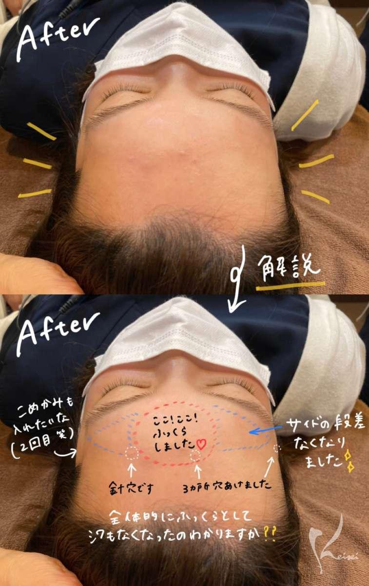 赤松さんヒアルロン酸注入前後の写真