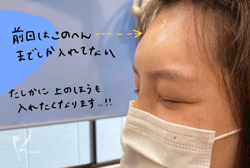 赤松さん1回目のヒアルロン酸注入後の額の段差を示す写真