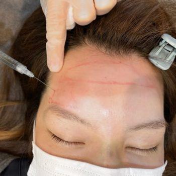赤松さん2回目のヒアルロン酸注入の施術中の写真