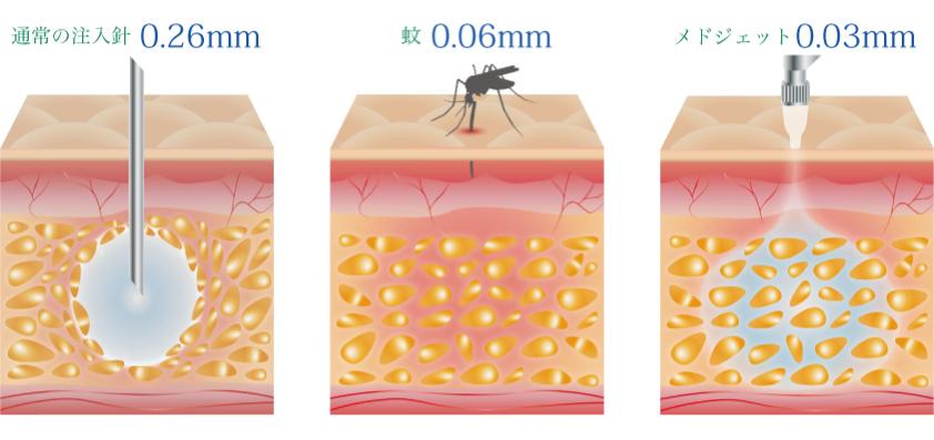 botox ボトックス ボツリヌス アラガン ビスタ しわ エイジングケア アンチエイジング 多汗症 メドジェット蚊の針より細い