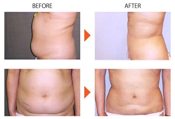 脂肪吸引 ベイザー ダイエット メディカルダイエット 痩身 腹部 症例