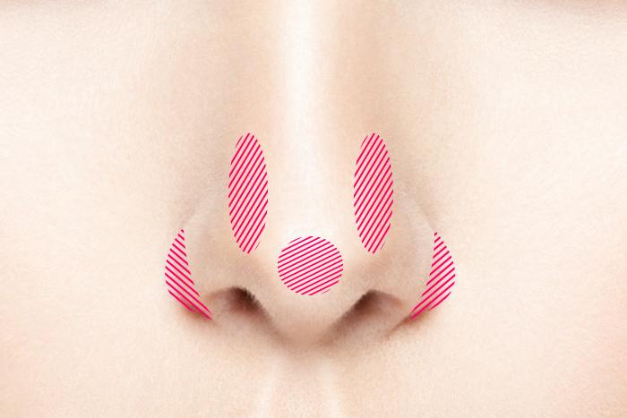 bnls 脂肪溶解注射 小鼻縮小 bnlsneo 太い鼻筋